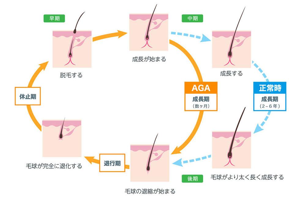 一般病院との比較毛髪サイクル